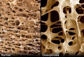 Ostheoperosis